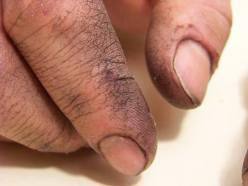 Mãos calejadas